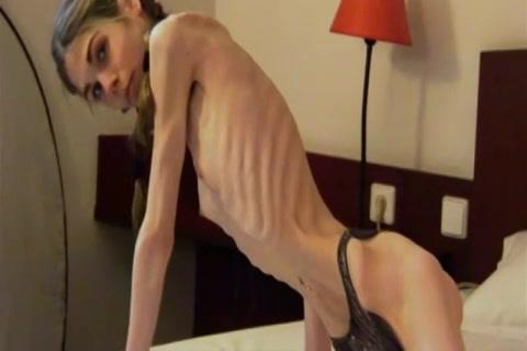 Anorexia meisje lijkt wel een skelet